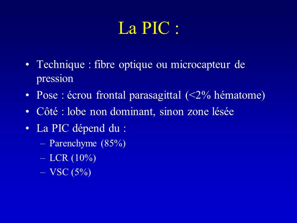 La PIC : Technique : fibre optique ou microcapteur de pression