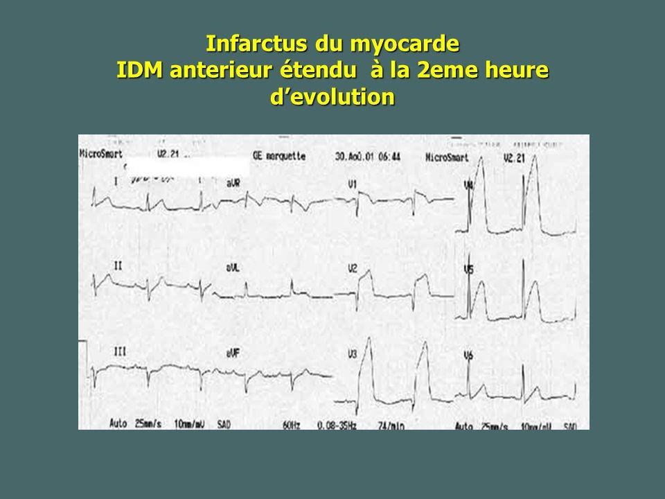 Infarctus du myocarde IDM anterieur étendu à la 2eme heure d'evolution