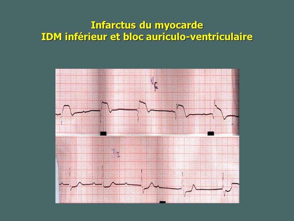 Infarctus du myocarde IDM inférieur et bloc auriculo-ventriculaire