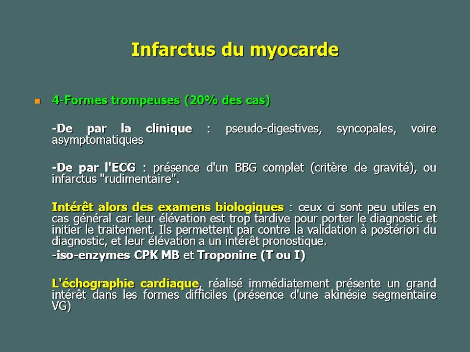 Infarctus du myocarde 4-Formes trompeuses (20% des cas)