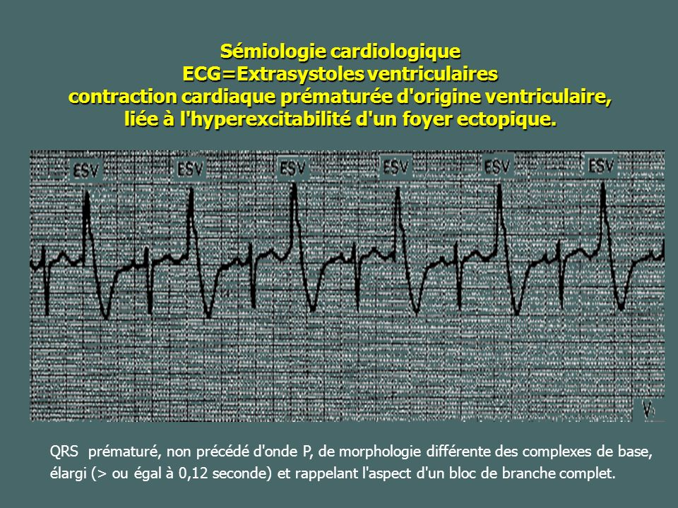 Sémiologie cardiologique ECG=Extrasystoles ventriculaires contraction cardiaque prématurée d origine ventriculaire, liée à l hyperexcitabilité d un foyer ectopique.