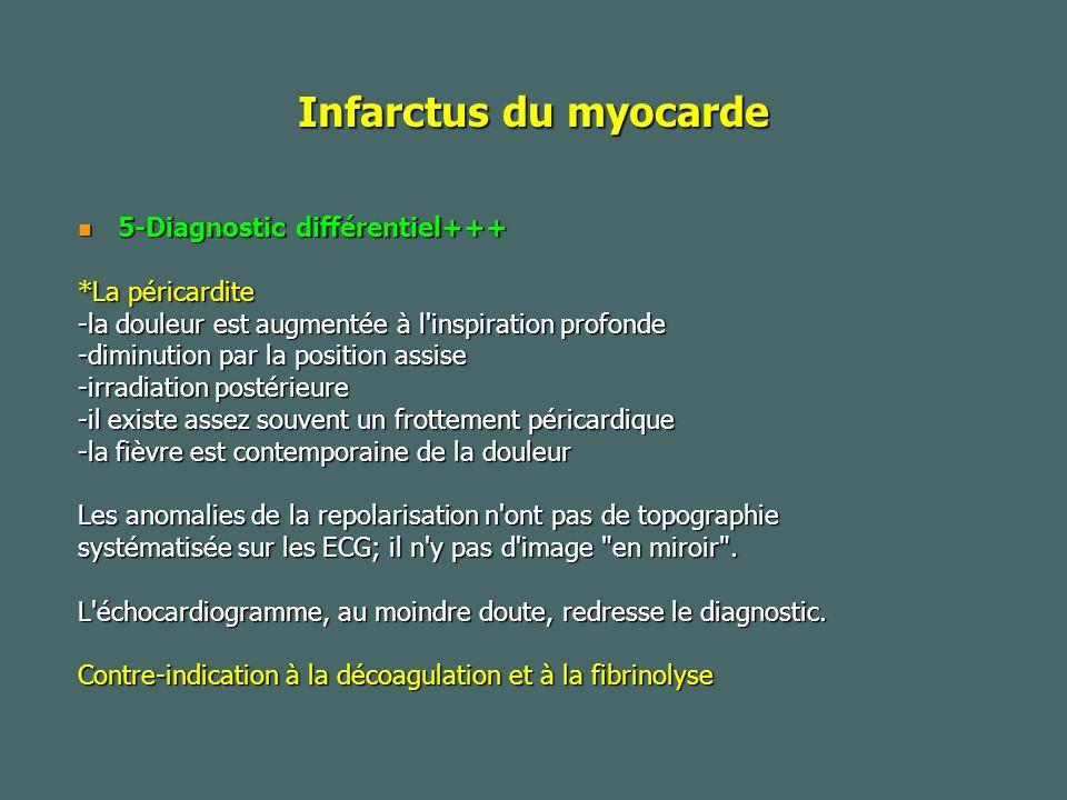Infarctus du myocarde 5-Diagnostic différentiel+++ *La péricardite