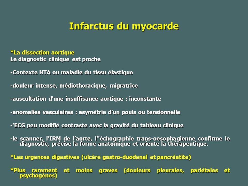 Infarctus du myocarde *La dissection aortique