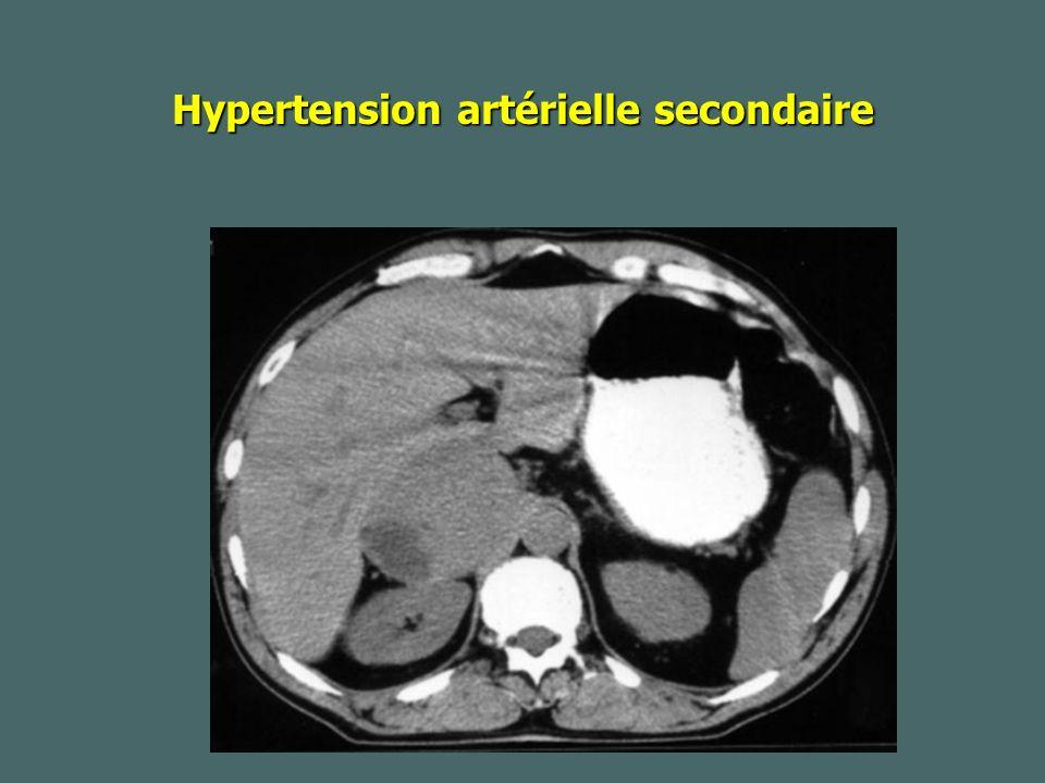 Hypertension artérielle secondaire