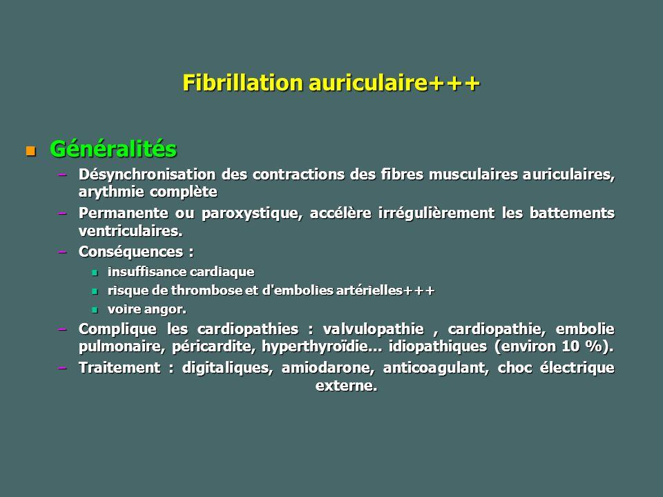 Fibrillation auriculaire+++
