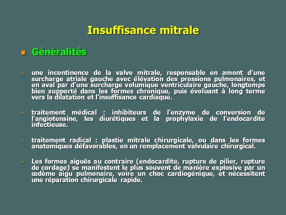 Insuffisance mitrale Généralités