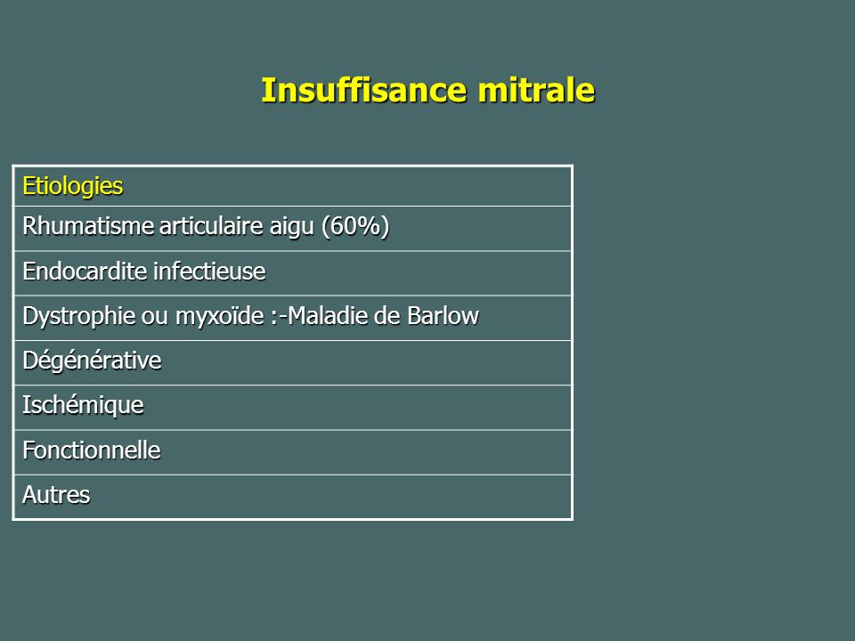 Insuffisance mitrale Etiologies Rhumatisme articulaire aigu (60%)