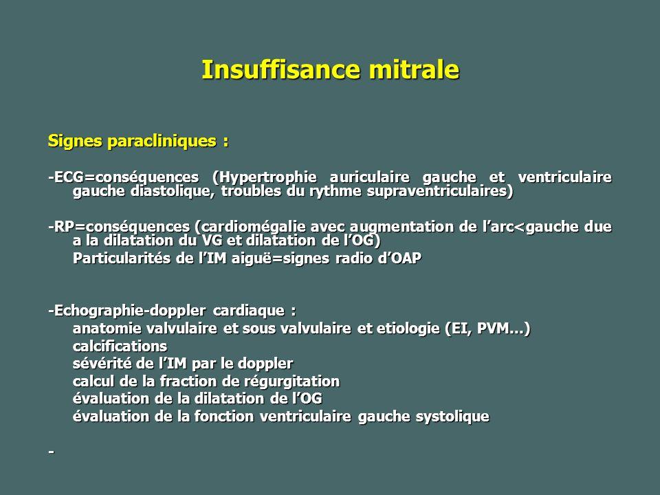 Insuffisance mitrale Signes paracliniques :