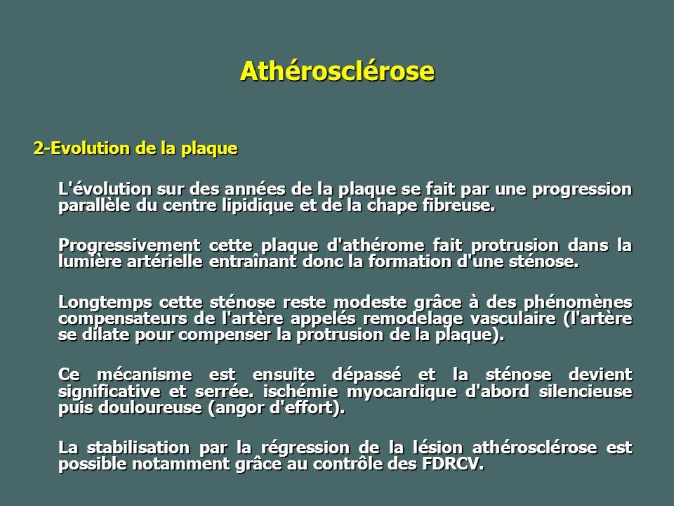 Athérosclérose 2-Evolution de la plaque