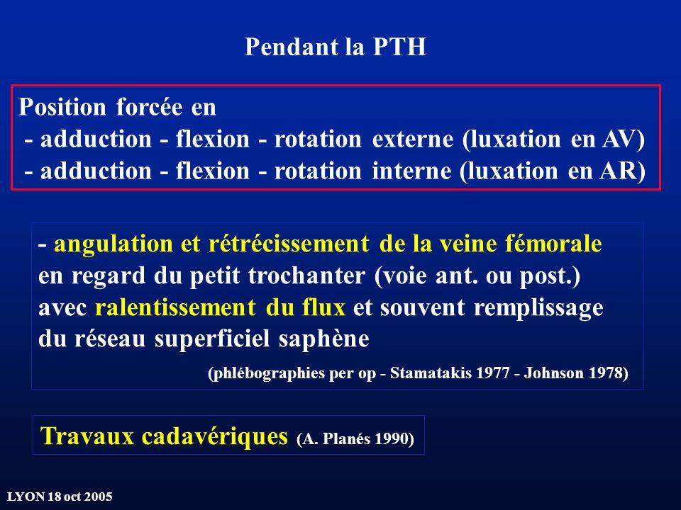 Pendant la PTH Position forcée en. - adduction - flexion - rotation externe (luxation en AV)