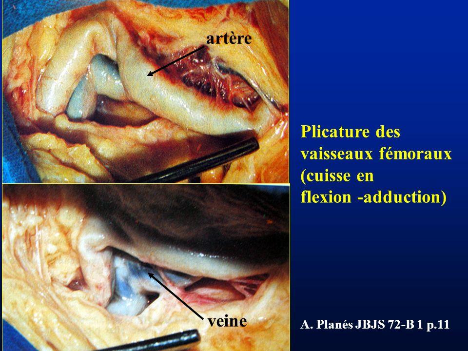 artère Plicature des vaisseaux fémoraux (cuisse en flexion -adduction)