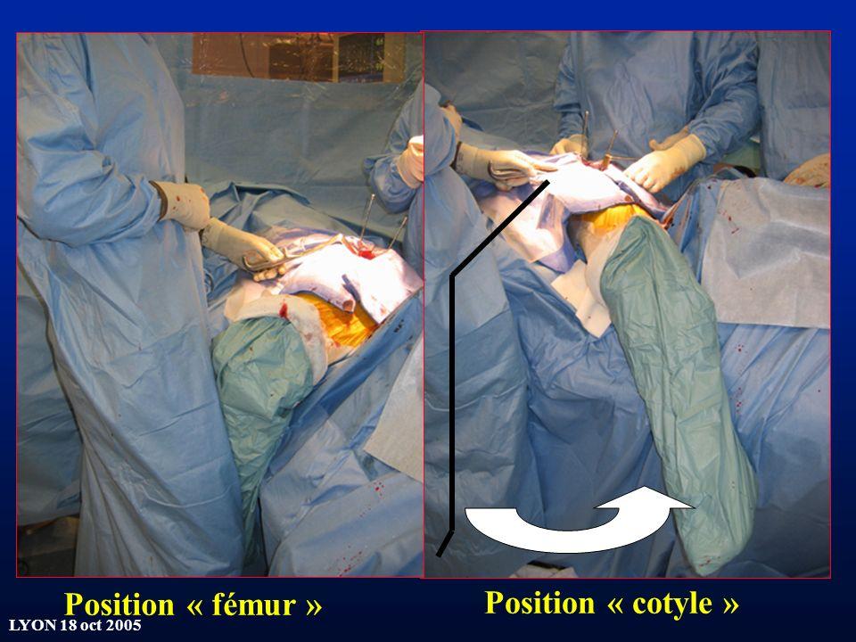 Position « fémur » Position « cotyle »