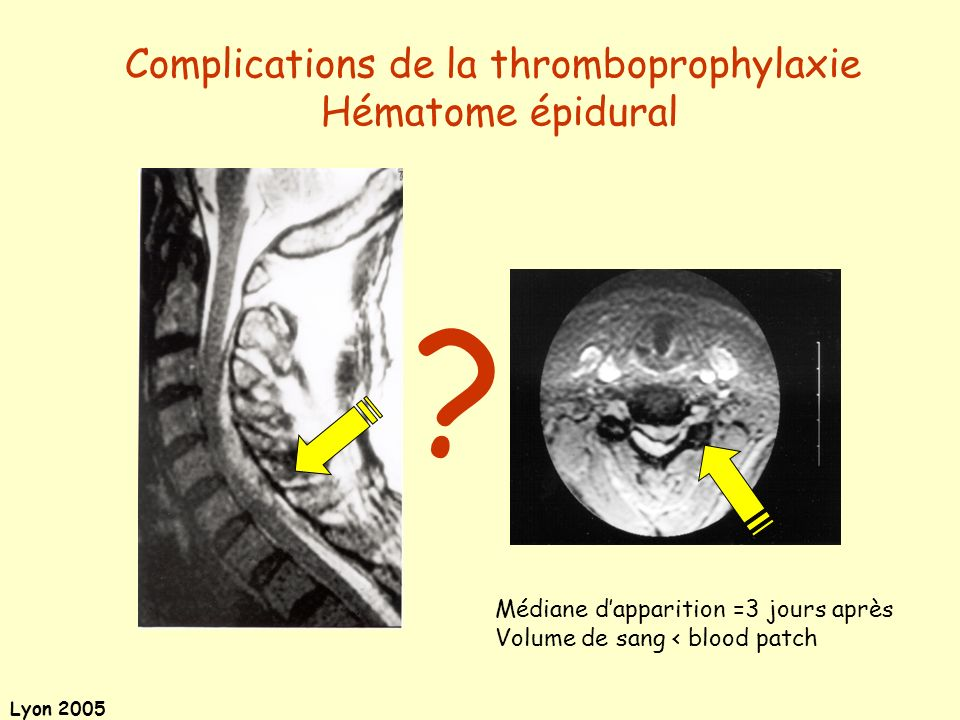 Complications de la thromboprophylaxie Hématome épidural