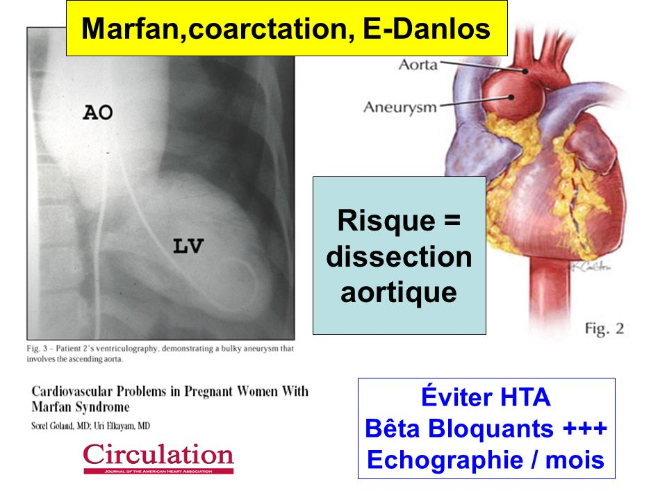 Marfan,coarctation, E-Danlos