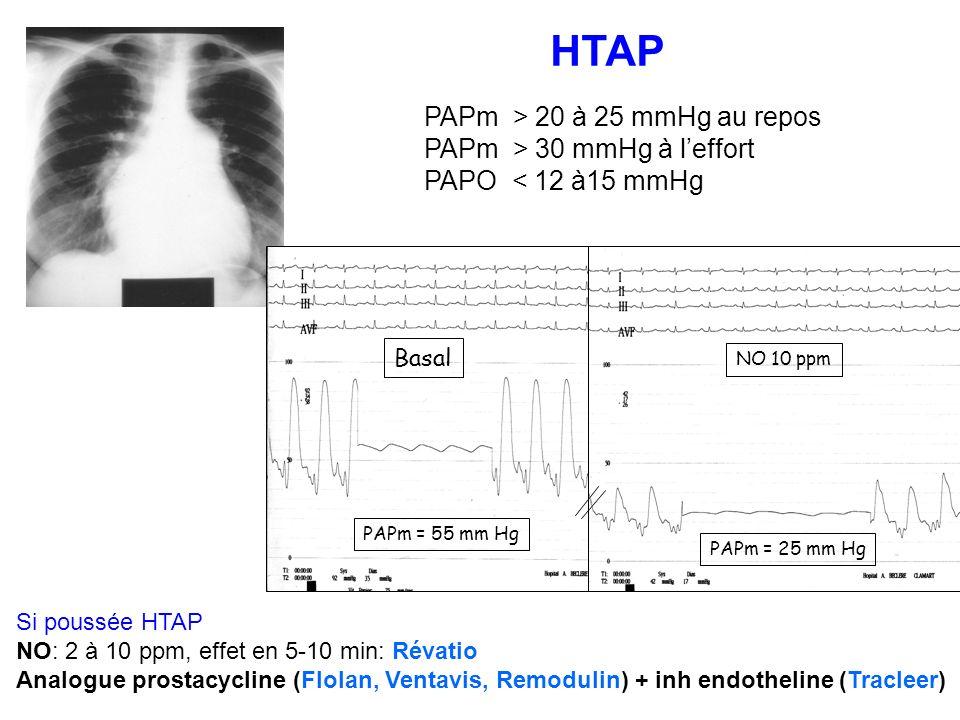 HTAP PAPm > 20 à 25 mmHg au repos PAPm > 30 mmHg à l'effort