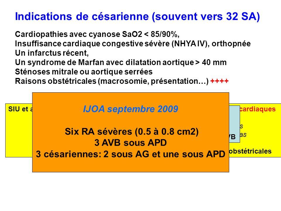 Indications de césarienne (souvent vers 32 SA)