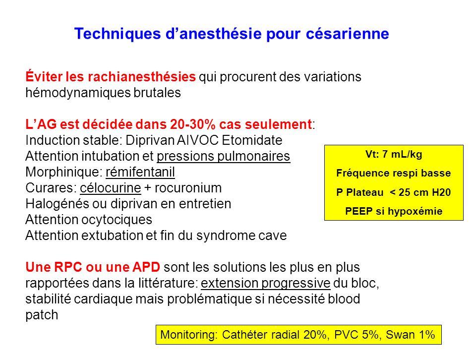 Techniques d'anesthésie pour césarienne