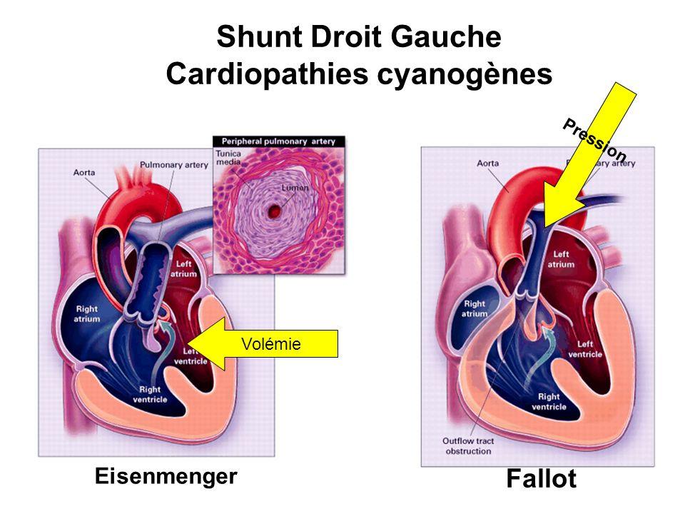 Cardiopathies cyanogènes