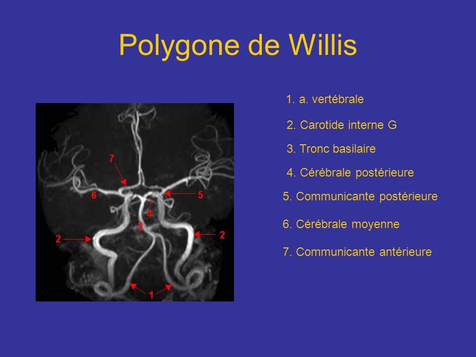 Polygone de Willis 1. a. vertébrale 2. Carotide interne G