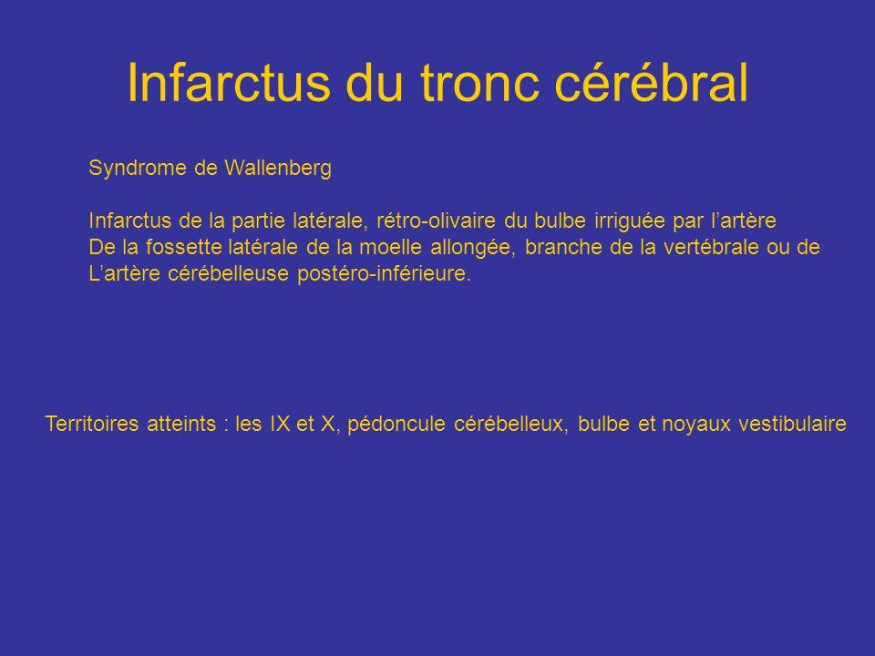 Infarctus du tronc cérébral
