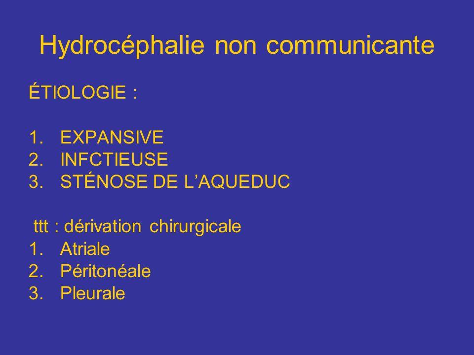 Hydrocéphalie non communicante
