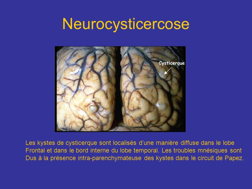 Neurocysticercose Les kystes de cysticerque sont localisés d'une manière diffuse dans le lobe.