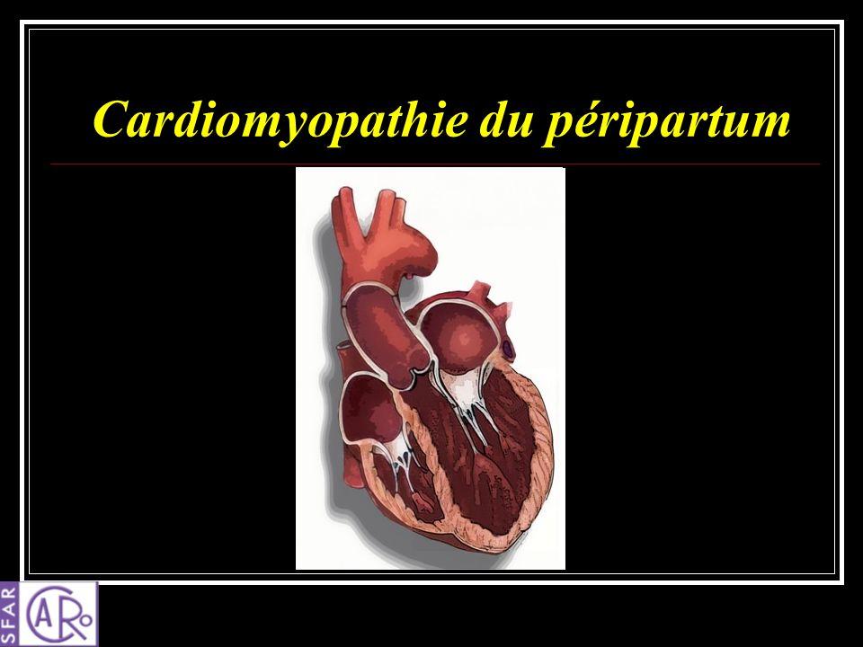 Cardiomyopathie du péripartum