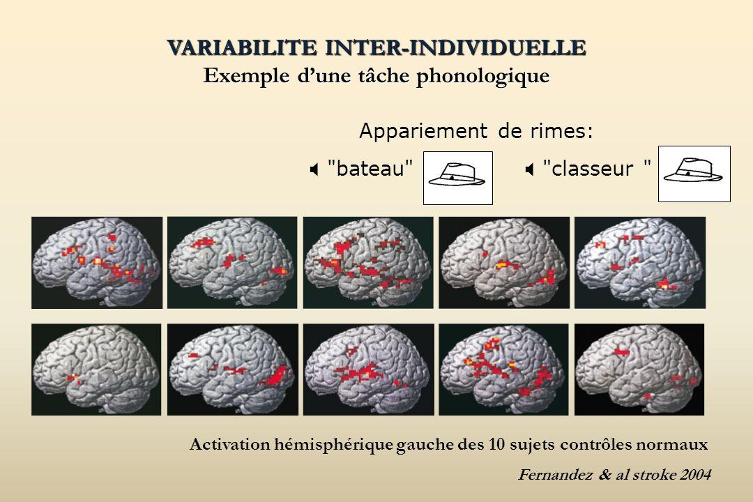 VARIABILITE INTER-INDIVIDUELLE Exemple d'une tâche phonologique