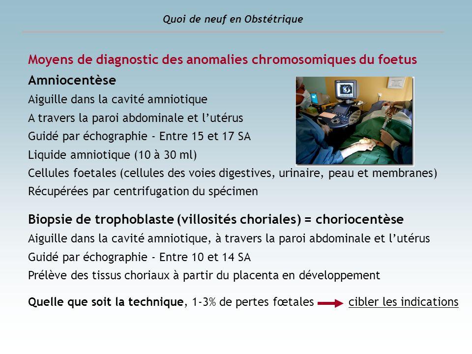 Moyens de diagnostic des anomalies chromosomiques du foetus