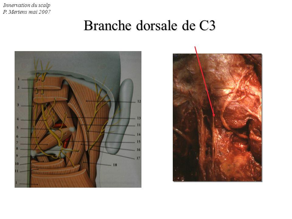 Innervation du scalp P. Mertens mai 2007 Branche dorsale de C3