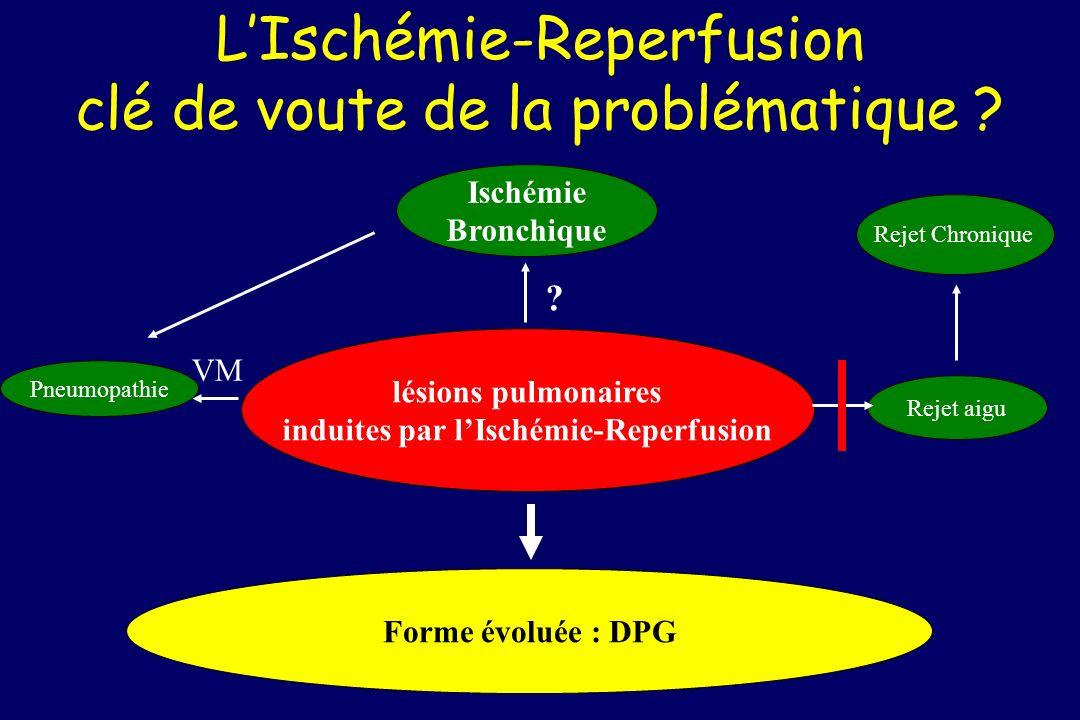 L'Ischémie-Reperfusion clé de voute de la problématique