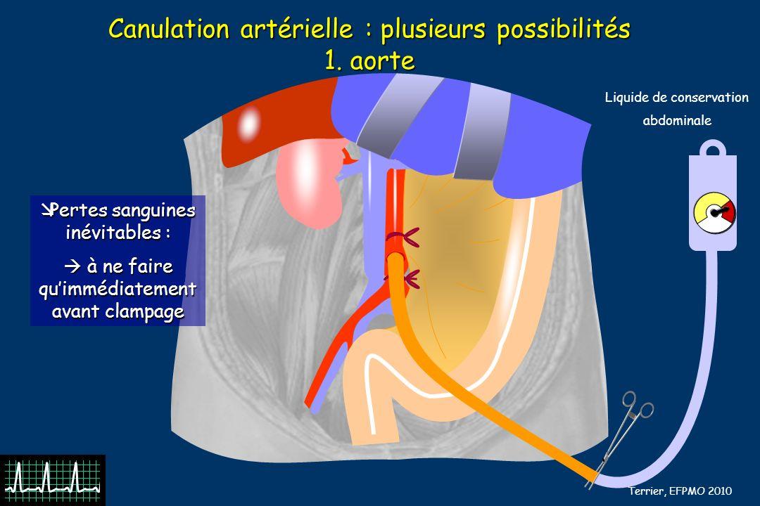 Canulation artérielle : plusieurs possibilités 1. aorte