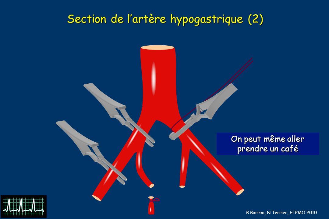 Section de l'artère hypogastrique (2)