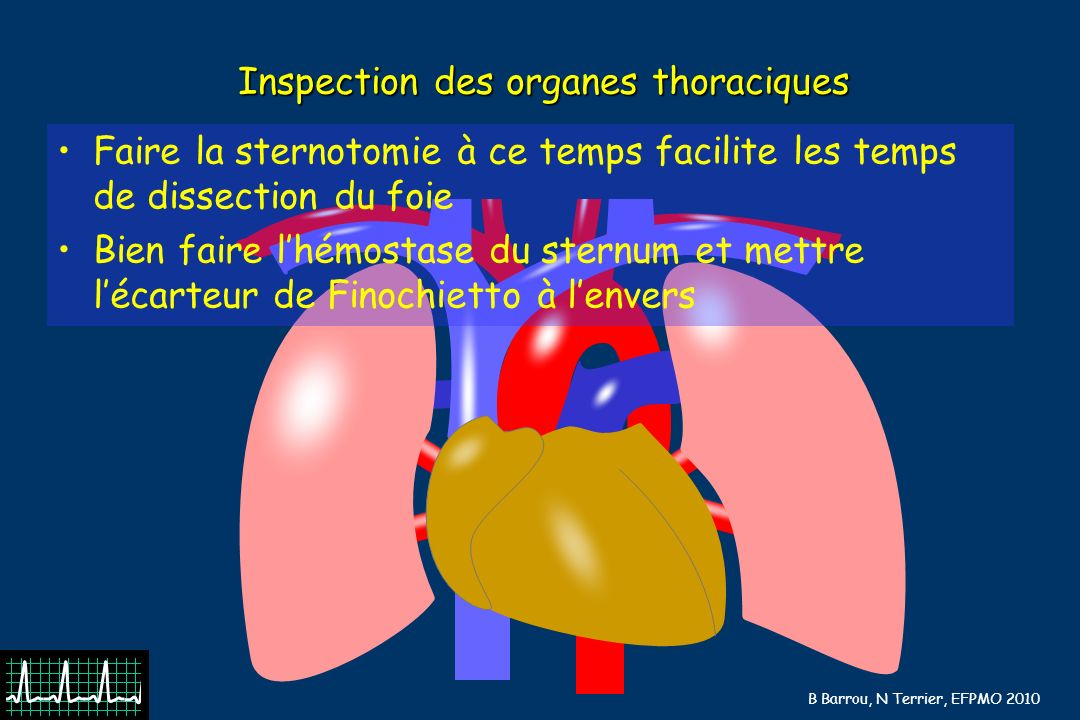 Inspection des organes thoraciques