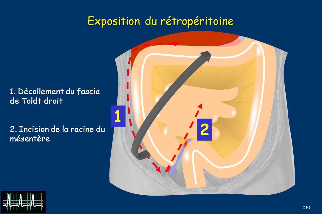 Exposition du rétropéritoine