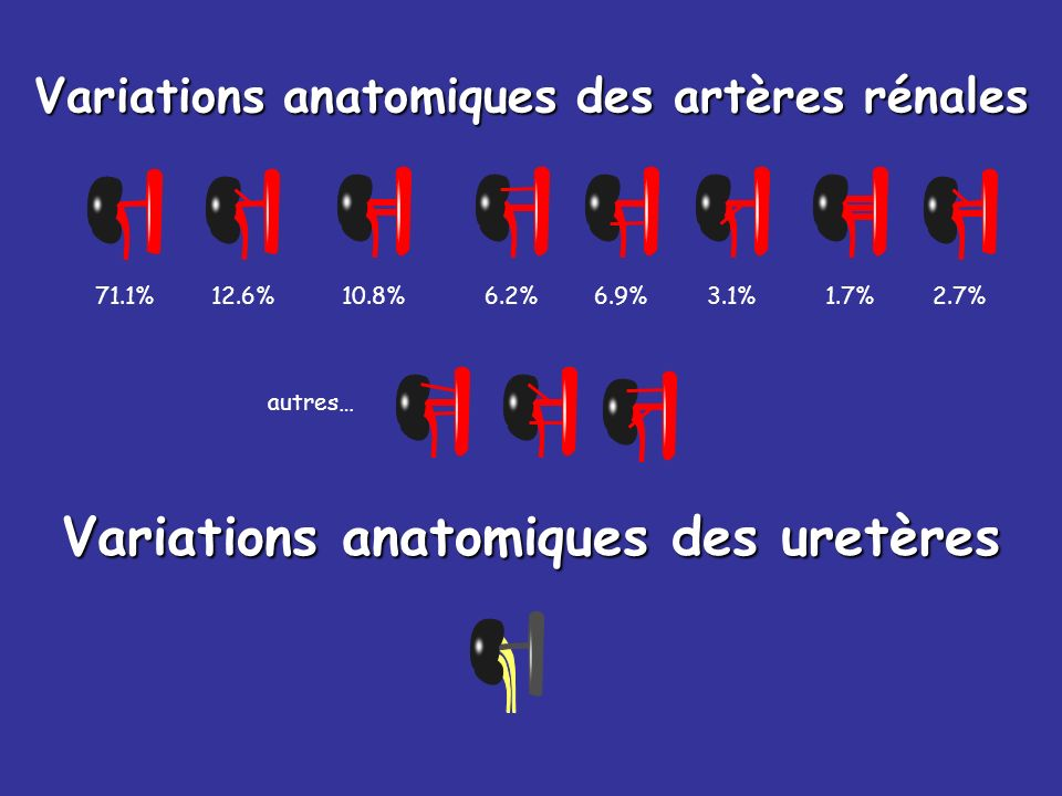 Variations anatomiques des artères rénales