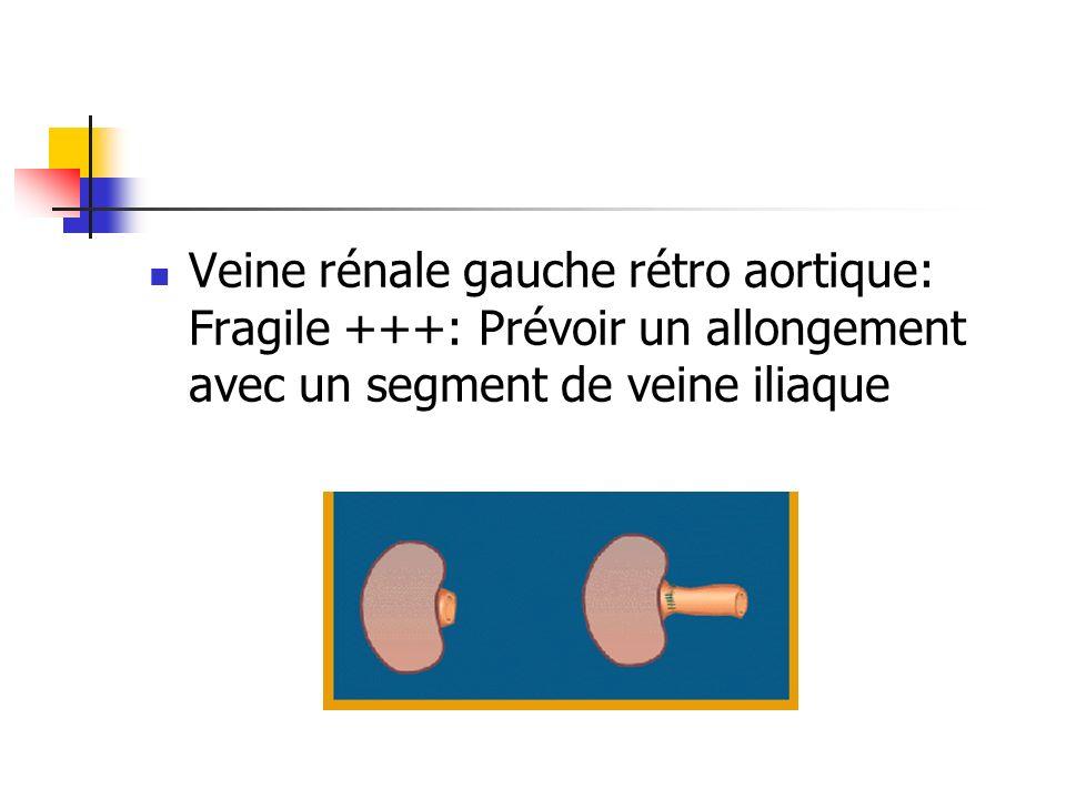 Veine rénale gauche rétro aortique: Fragile +++: Prévoir un allongement avec un segment de veine iliaque