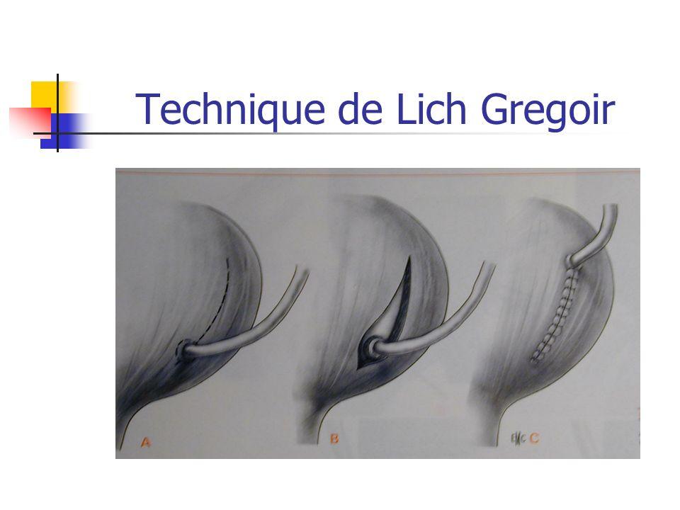Technique de Lich Gregoir