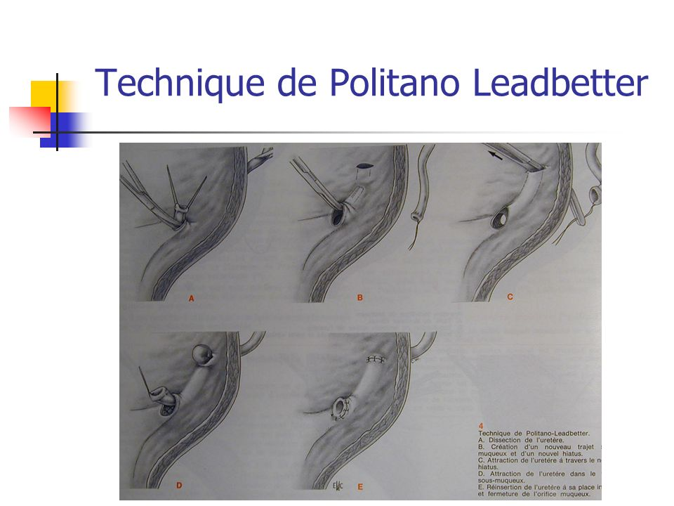 Technique de Politano Leadbetter