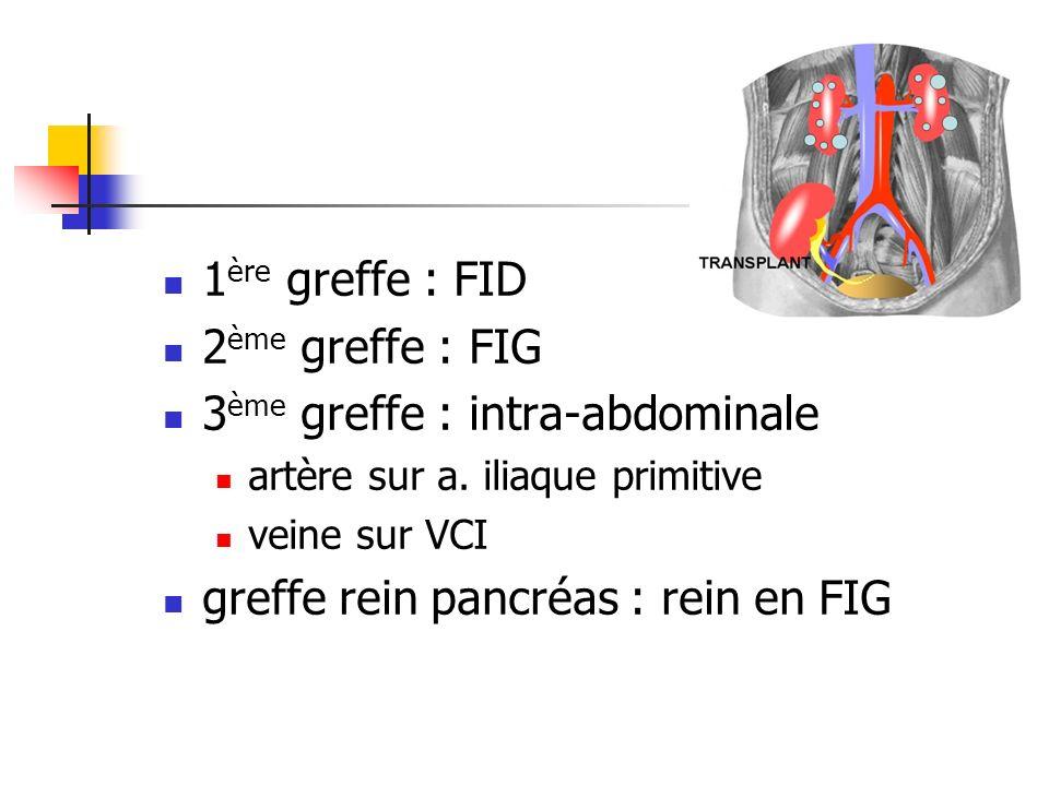 3ème greffe : intra-abdominale
