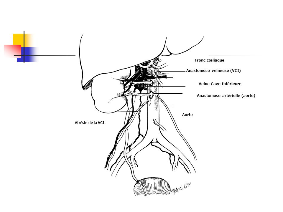 Anastomose veineuse (VCI) Anastomose artérielle (aorte)