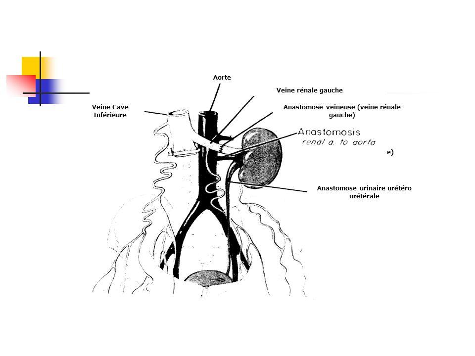 Anastomose veineuse (veine rénale gauche)