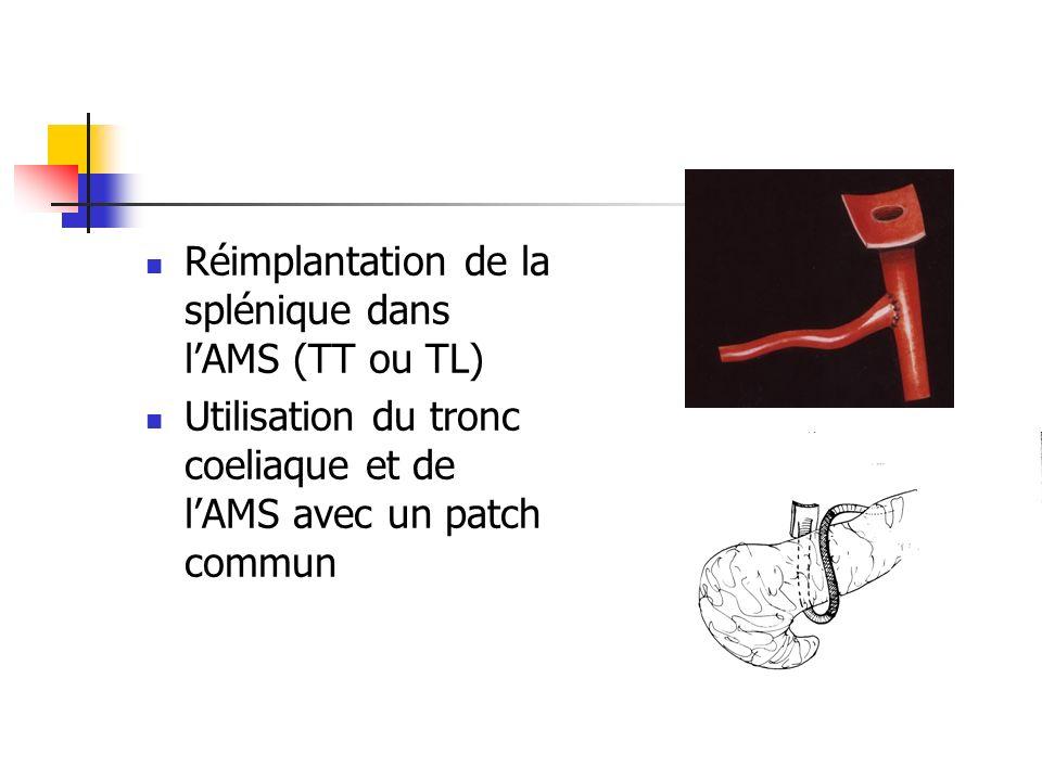 Réimplantation de la splénique dans l'AMS (TT ou TL)