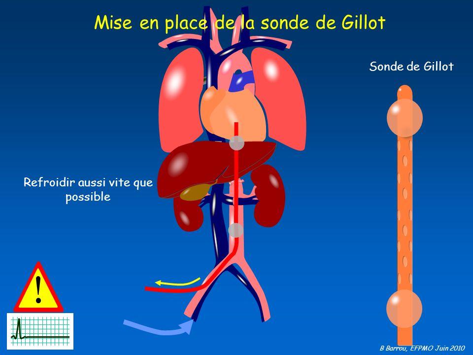 Mise en place de la sonde de Gillot