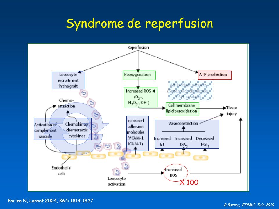 Syndrome de reperfusion