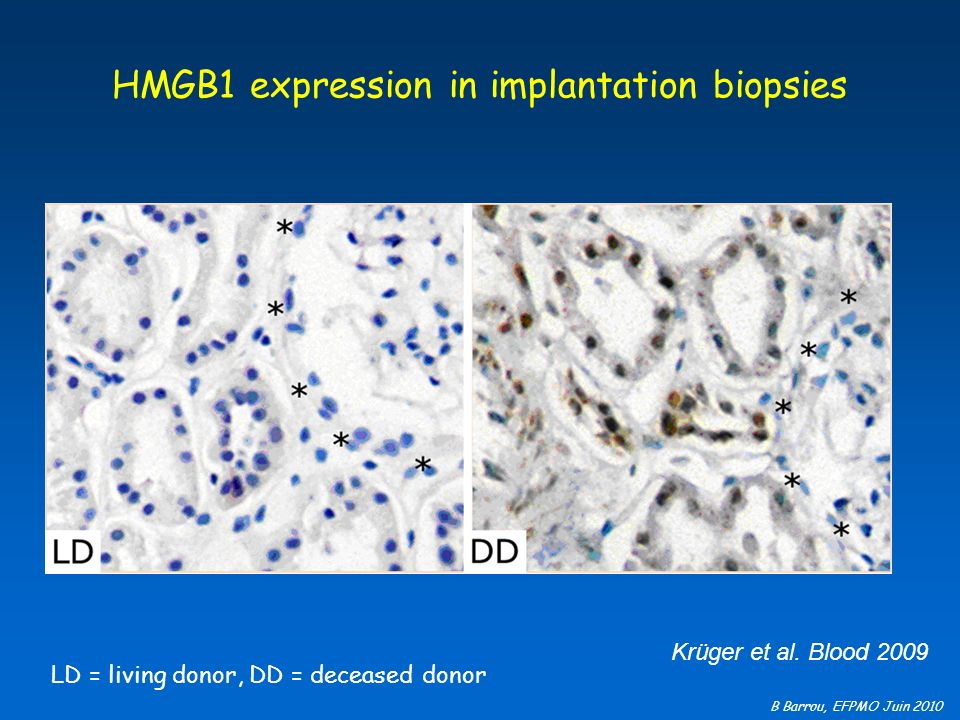 HMGB1 expression in implantation biopsies