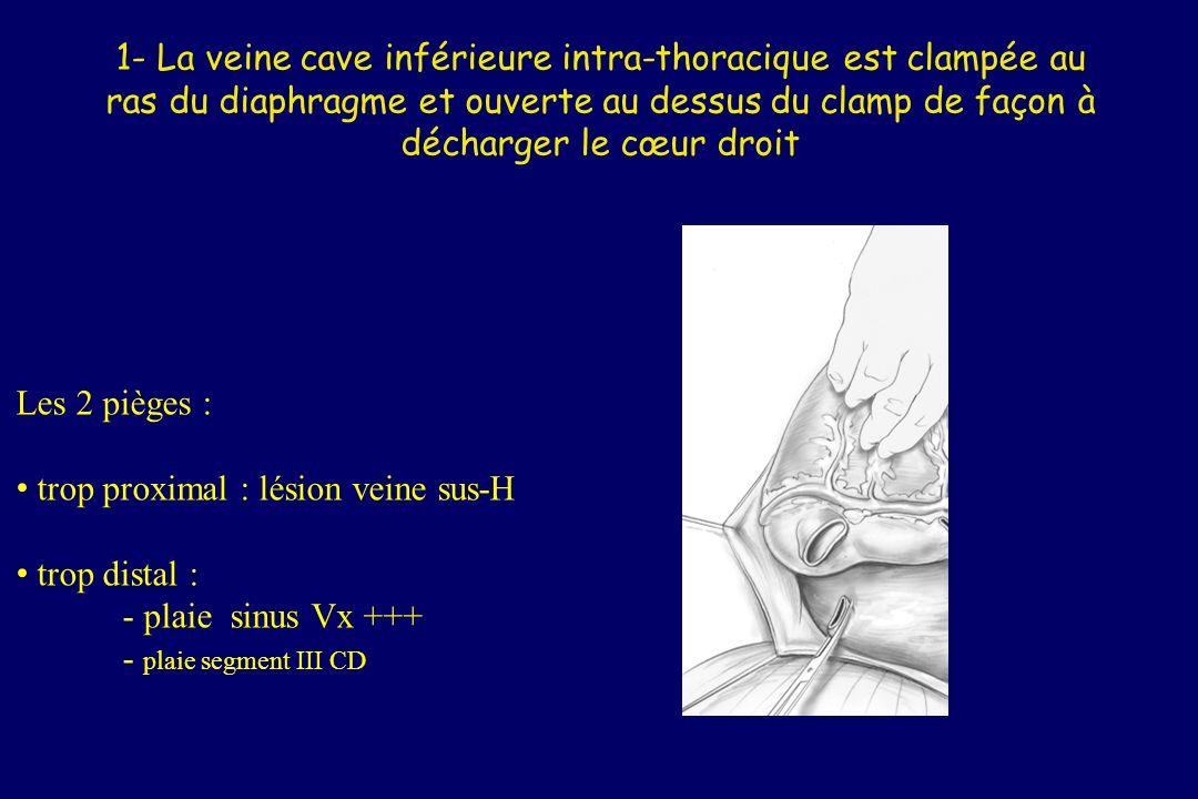 1- La veine cave inférieure intra-thoracique est clampée au ras du diaphragme et ouverte au dessus du clamp de façon à décharger le cœur droit