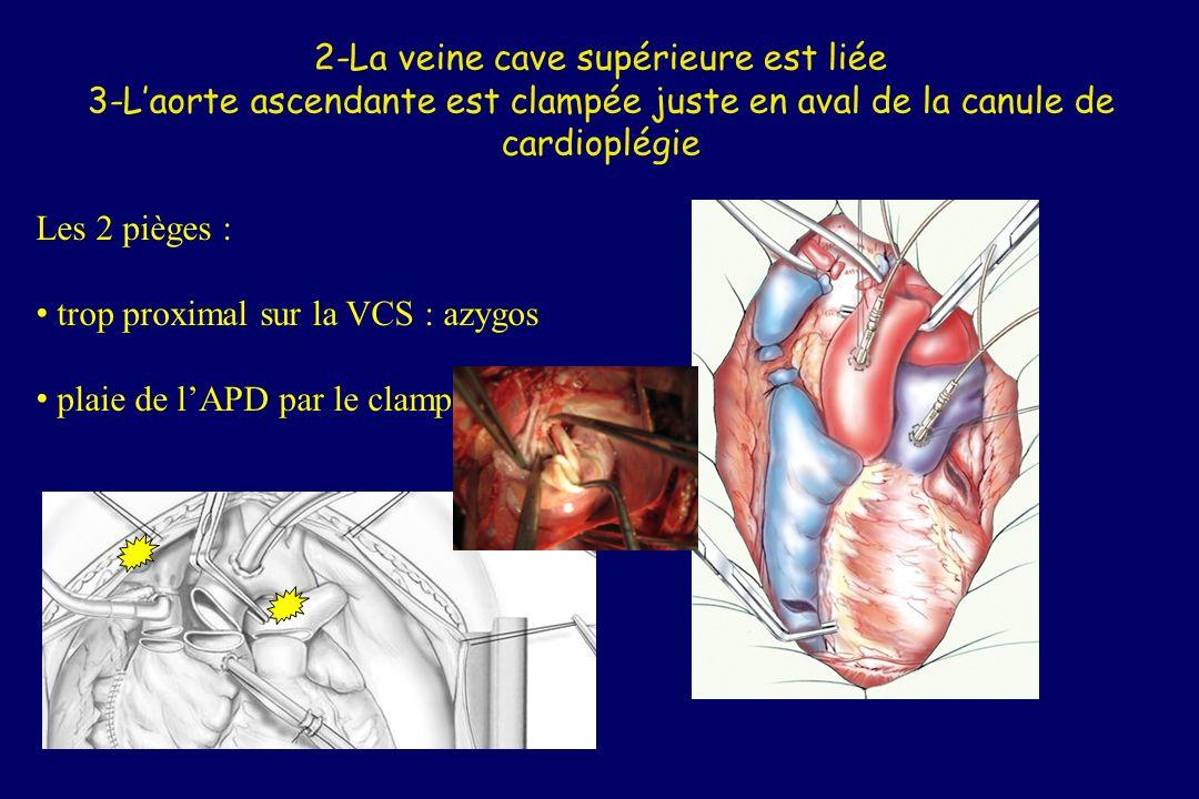 2-La veine cave supérieure est liée 3-L'aorte ascendante est clampée juste en aval de la canule de cardioplégie