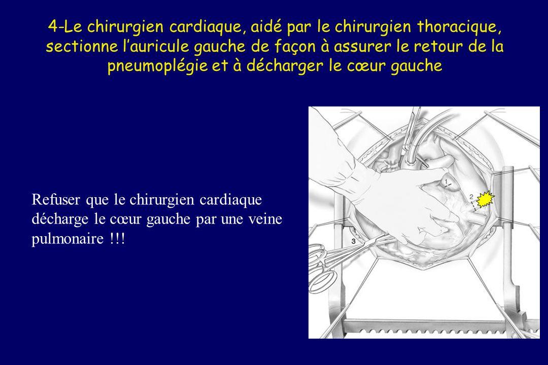 4-Le chirurgien cardiaque, aidé par le chirurgien thoracique, sectionne l'auricule gauche de façon à assurer le retour de la pneumoplégie et à décharger le cœur gauche