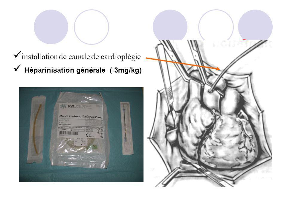 installation de canule de cardioplégie